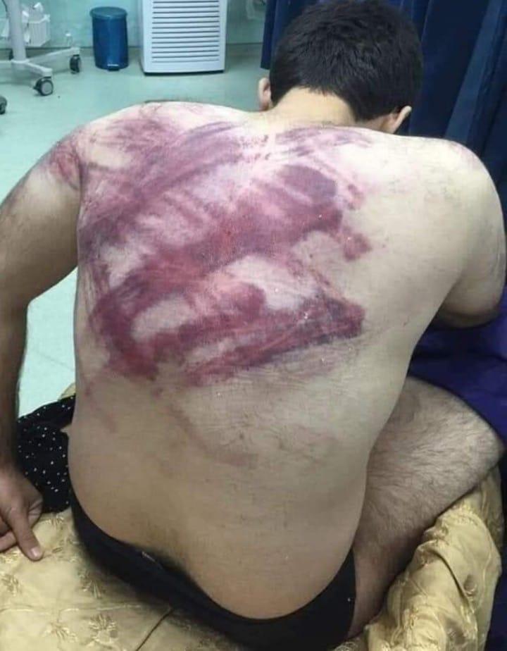 بالصور  ..  مركز جرائم الحرب يكشف عن تعذيب مدني مشتبه باسمه في سجن استخبارات الموصل