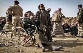 يونامي تكشف: 4800 شخص في مدينة الموصل فقدوا أطرافهم جراء الحرب
