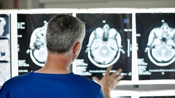 جهاز يربط المخ بالكمبيوتر لعلاج الجلطة والسرطان
