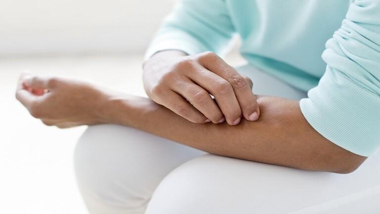 """دراسة تكشف عن خمس حالات جلدية يمكن ربطها بـ""""كوفيد-19"""""""