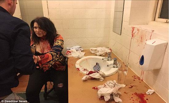 بسبب الغيرة.. حطمت رأسها وسالت دمائها داخل الحمام ؟؟؟!!!