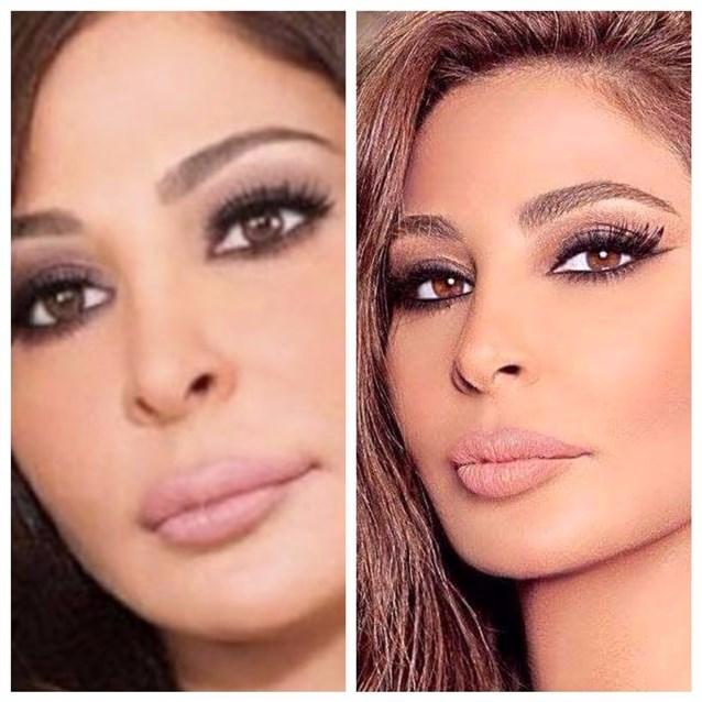 (بالصور) شفايف الفنانات بعد التجميل تثير الانتقادات  ؟!!
