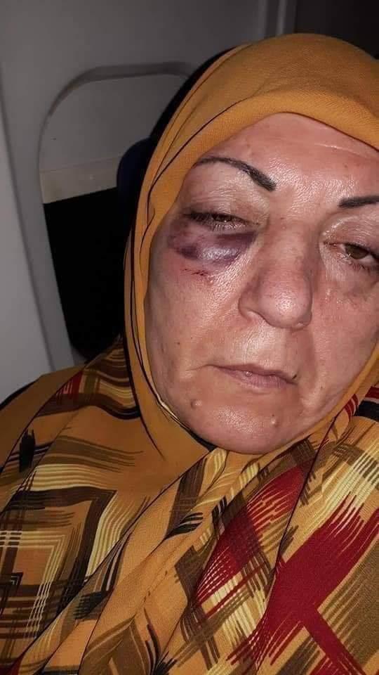 ايران تعتذر للسيدة المُعتدى عليها وتتكفل بمصاريف علاجها