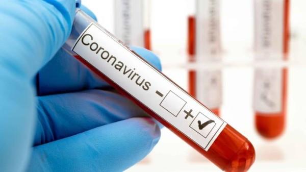علامة غير متوقعة تنبئك بالإصابة بفيروس كورونا
