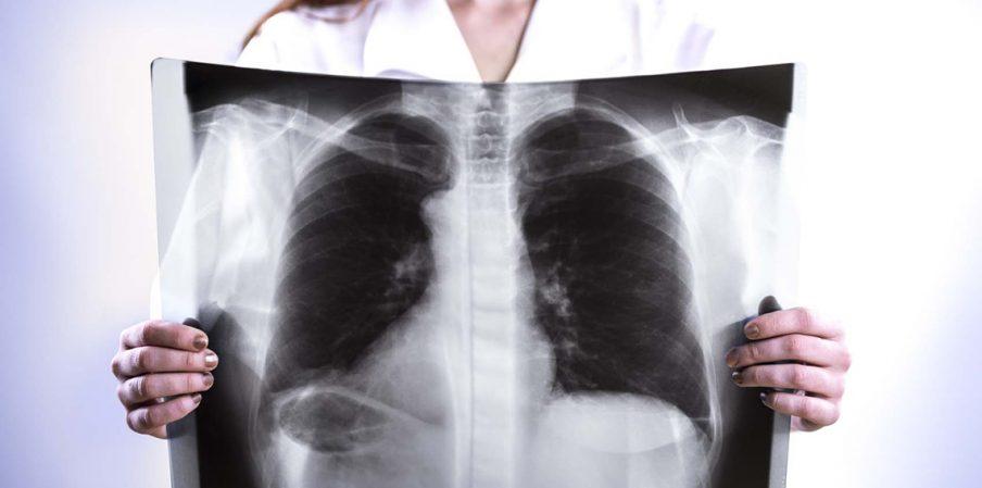 في نصف ساعة.. علاج ثوري للقضاء على سرطان الرئة